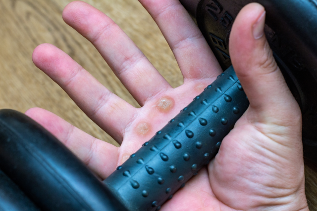 hand callus from a gym workout